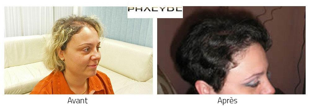 Quel utiliser lhuile pour la croissance des cheveu