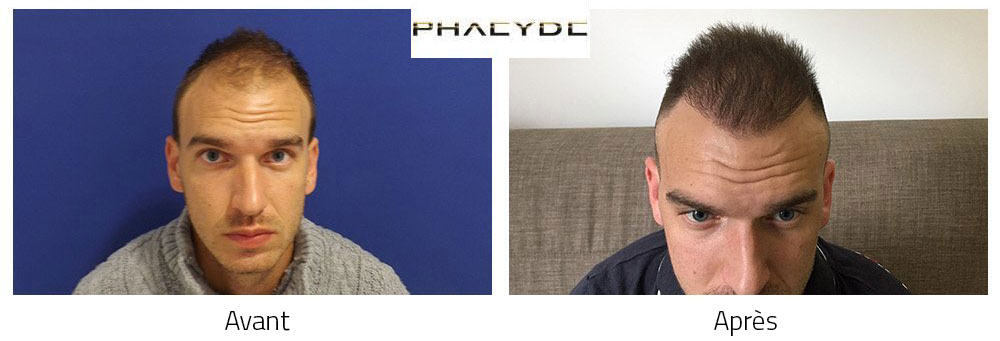 hair transplant cs karoly 5000 before after. Black Bedroom Furniture Sets. Home Design Ideas