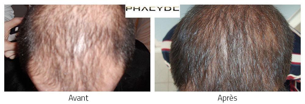 Le traitement des cheveu de la capsule