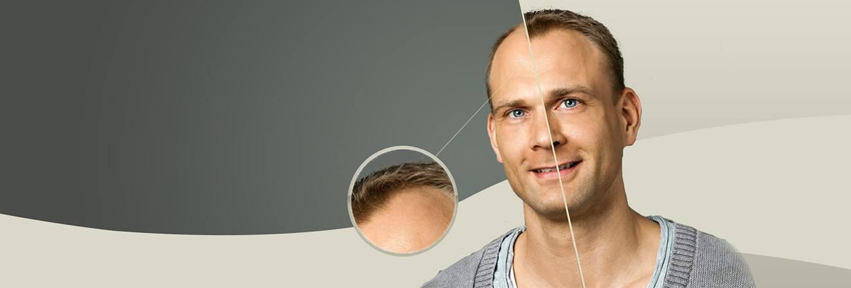 Sauver les cheveux tombant