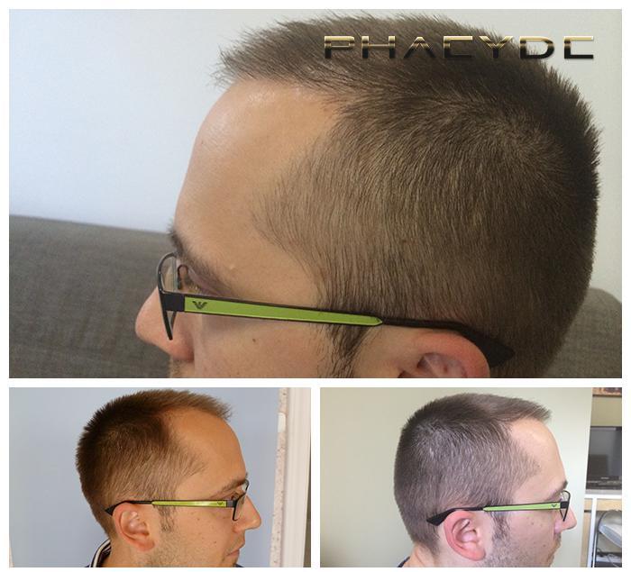 greffe de cheveux et la pigmentation des cheveux avant apr s photos r sultats. Black Bedroom Furniture Sets. Home Design Ideas