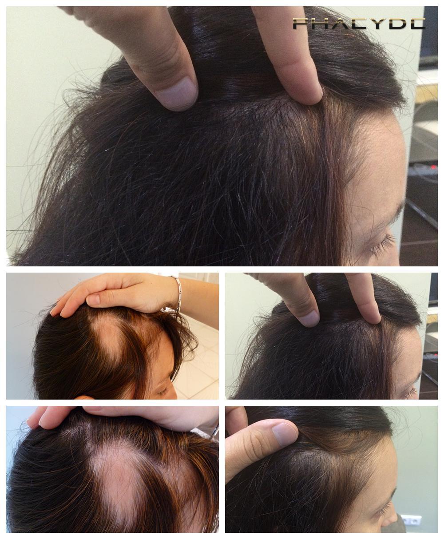 Déjà un an tombent les cheveux après les couches que faire
