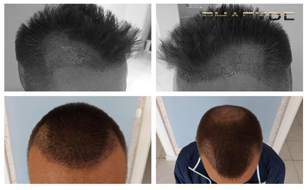 transplantation de cheveux avant apr s photos et video r sultats des hommes et des femmes. Black Bedroom Furniture Sets. Home Design Ideas