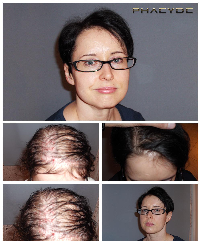 greffe de cheveux pour les femmes raisonnable et sans douleur au phaeyde. Black Bedroom Furniture Sets. Home Design Ideas